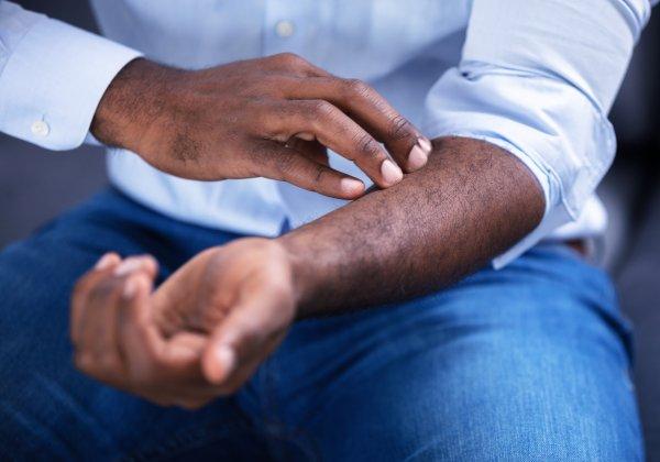 Closeup of a man scratching his arm